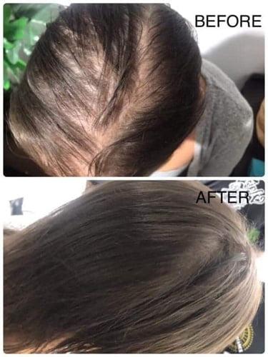 Thinning-hair-alopecia-receeding-hairline