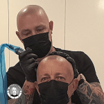 3rd-session-scalp-micropigmentation-in-action