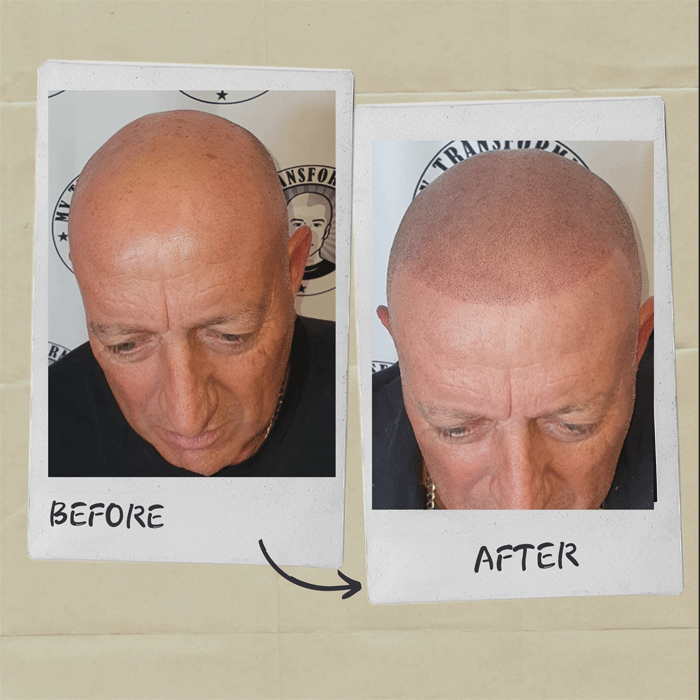 Scalp-Micropigmentation-before-and-after