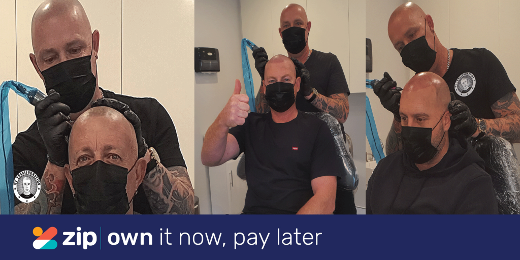 Scalp Micropigmentation Pay with Zip Pay
