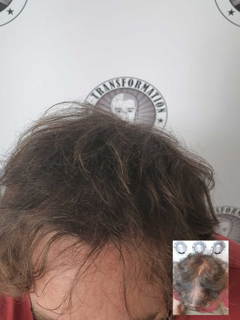 SMP-FOR-THINNING-HAIR