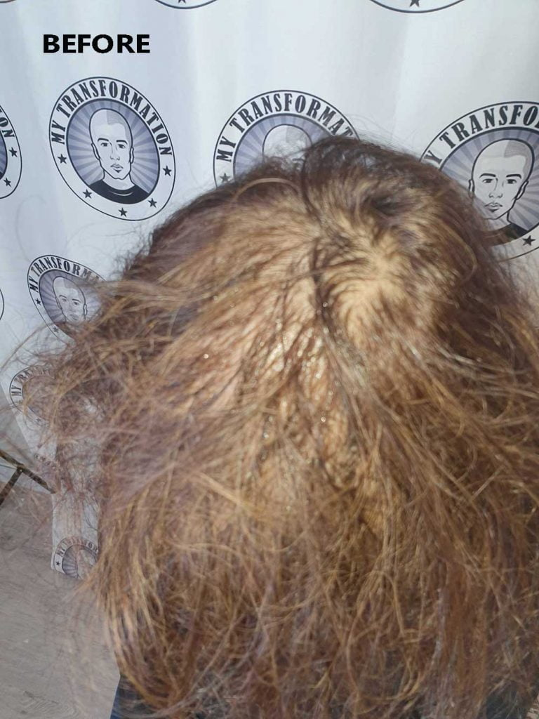 women-with-thinning-hair