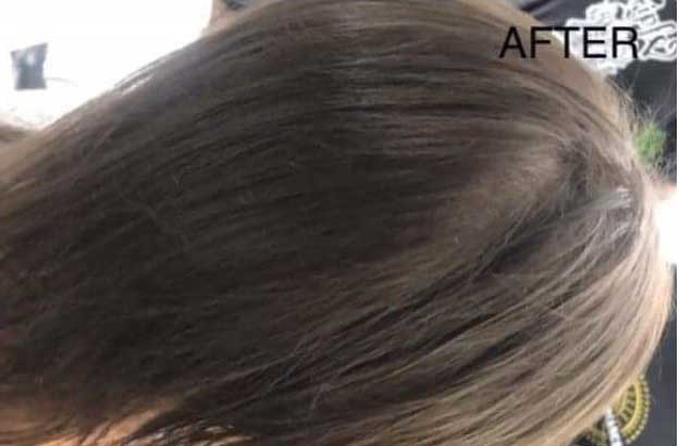 womens-hairloss-after-SMP