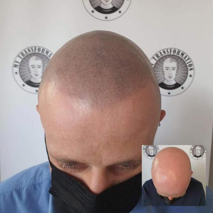 why-have-scalp-micropigmentation-(SMP)-Hair-Tattoo