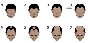 norwood scale for hairloss