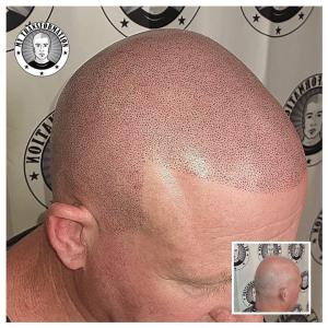 2nd session Scalp Micropigmentation