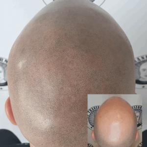 Tom-back-head-final-session-Smp