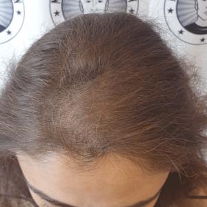 adding-scalp-micropigmentation-density-to-a-lady