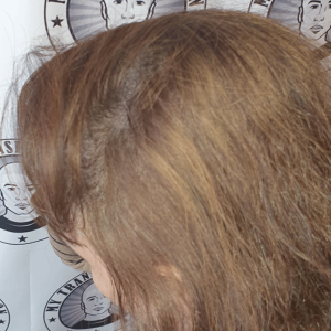 adding-scalp-micropigmentation-density-to-a-lad