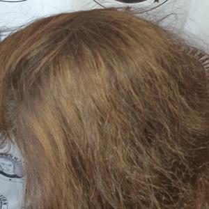 adding-scalp-micropigmentation-density-to-a-lady.