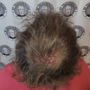 Scalp Micropigmentation done by Michael Pickering @ My Transformation Mount Lawley Perth