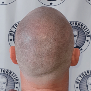 after-smp---scalp-micropigmentation-3rd-session