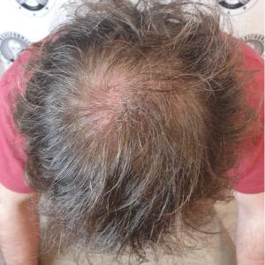 before-scalp-micropigmentation