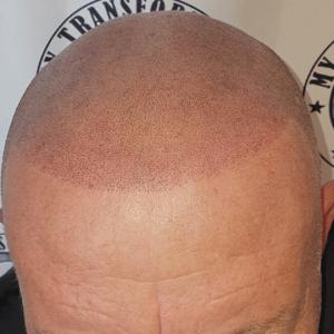 client-front-view-scalp-micrpigmentation