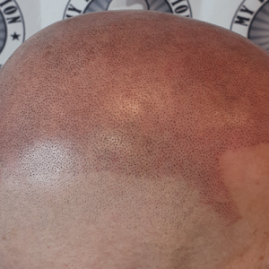 Scalp Micropigmentation done by Michael Pickering My Transformation