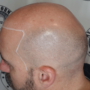 mapping-hairline-ready-for-scalp-micropigmentation-mount-lawley-perth