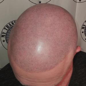 second-scalp-micropigmentation-session