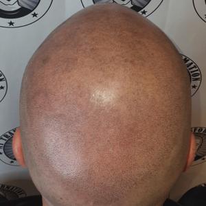 second-scalp-micropigmentation-session-perth