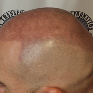 second-scalp-micropigmentation-session.side-view